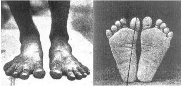 A pair of Healthy Feet that have never worn shoes