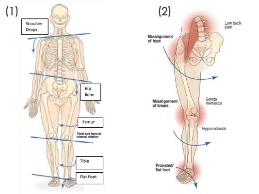 Effects of Flat Feet