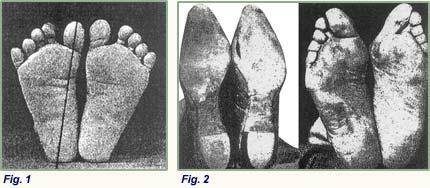 Bare Feet vs. Shoed feet