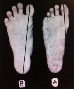 Healthy Feet vs. Shoed Feet 2