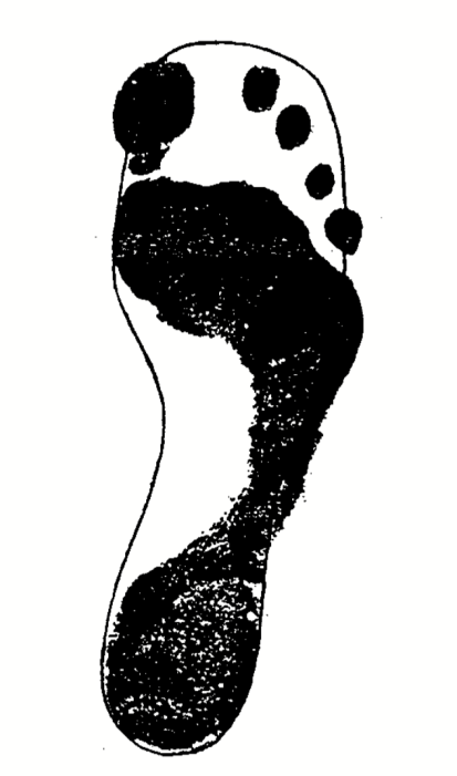 Footprint Overlap on Typical Shaped Shoe