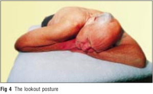 sleepingpostures4